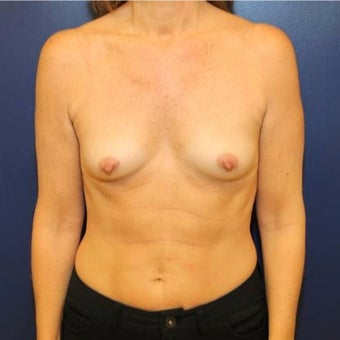 50 year old woman treated with Breast Augmentation before 1881284