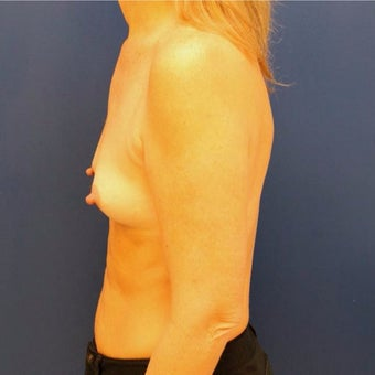 50 year old woman treated with Breast Augmentation 1881284