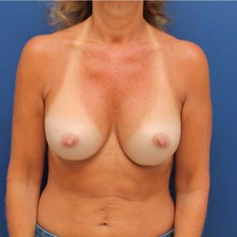 50 year old woman treated with Breast Augmentation after 1881284