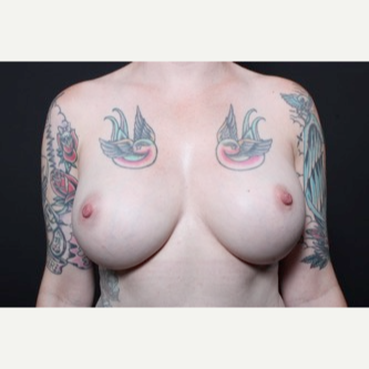 25-34 year old woman treated with Breast Implant Revision before 3681241