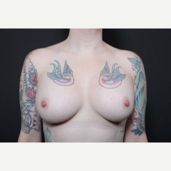 25-34 year old woman treated with Breast Implant Revision after 3681241