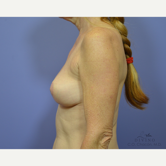 55-64 year old woman treated with Breast Lift after 3329481