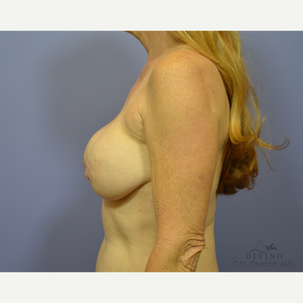 55-64 year old woman treated with Breast Lift before 3329481