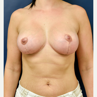 35-44 year old woman treated with Breast Implant Revision after 3486961