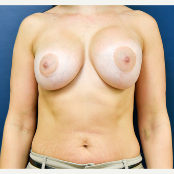 35-44 year old woman treated with Breast Implant Revision before 3486961