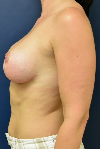 35-44 year old woman treated with Breast Implant Revision 3486961