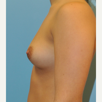 Breast Augmentation, B to D cup, silicone implants before 3492833