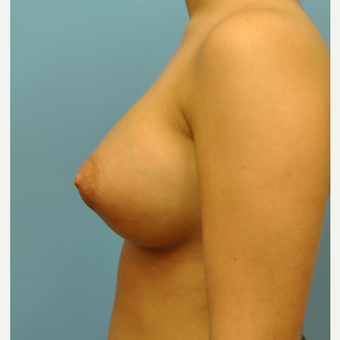 Breast Augmentation, B to D cup, silicone implants after 3492833