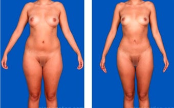 25-34 year old woman treated with Liposculpture before 2622524