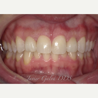 Peg laterals and yellow teeth treated with Porcelain Veneers after 3119873