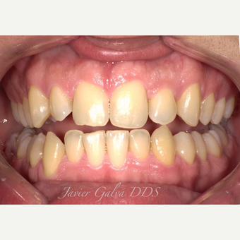 Peg laterals and yellow teeth treated with Porcelain Veneers before 3119873