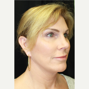 45-54 year old woman treated with Rhinoplasty before 3741499