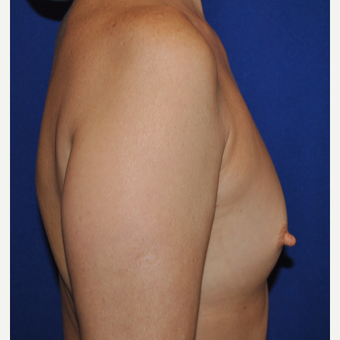 50 year old woman treated with Breast Augmentation before 3776301