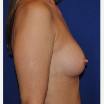 50 year old woman treated with Breast Augmentation after 3776301