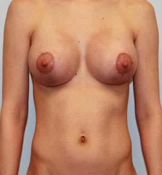 Dual Plane III (submuscular) Augmentation with Circumvertical Mastopexy after 932594