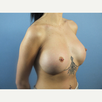 18-24 year old woman treated with Breast Augmentation after 3213463