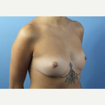 18-24 year old woman treated with Breast Augmentation before 3213463