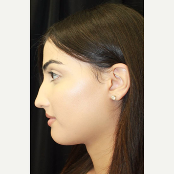 18-24 year old woman treated with Facial Feminization Surgery after 2747175