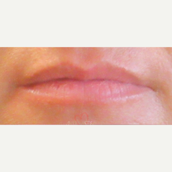 35-44 year old woman treated with Juvederm before 3381487