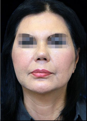 45-54 year old woman treated with Facelift after 3270015