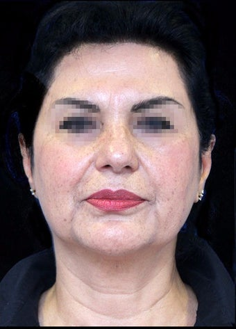 45-54 year old woman treated with Facelift before 3270015