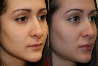 Permanent Lip Augmentation with Silikon-1000 before 1327146