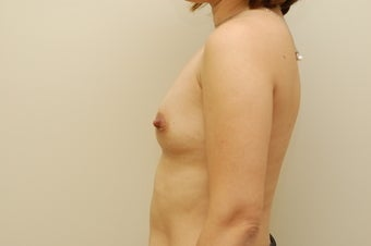35 year old female breast augmentation before 3103566