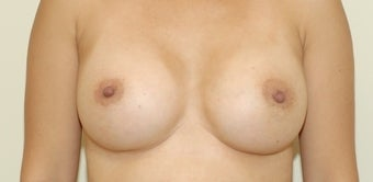 35 year old female breast augmentation 3103566