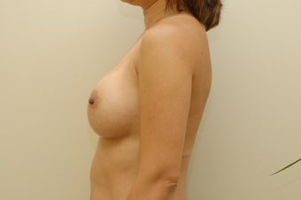 35 year old female breast augmentation after 3103566
