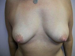 Breast Augmentation before 258594