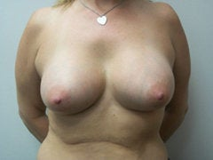 Breast Augmentation after 258594