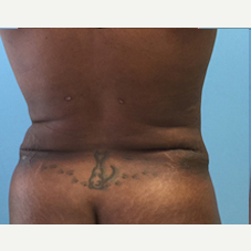 Liposuction after 3278937