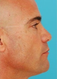 45-54 year old man treated with Revision Rhinoplasty