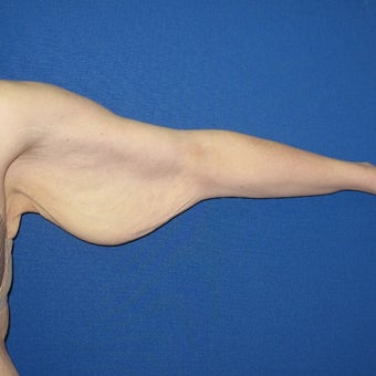 25-34 year old woman treated with Arm Lift before 1919740