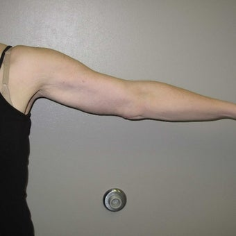 25-34 year old woman treated with Arm Lift after 1919740