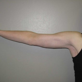 25-34 year old woman treated with Arm Lift 1919740