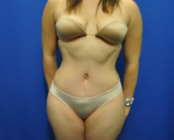 Hourglass Tummy Tuck by Dr. Wilberto Cortes after 371930