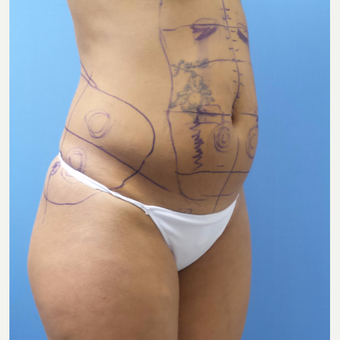 35-44 year old woman treated with Smart Lipo before 3097235