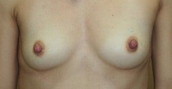 Breast Reconstruction before 517496