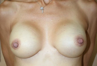 Breast Reconstruction after 517496
