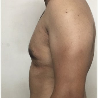 18-24 year old man treated with Male Breast Reduction after 1737615