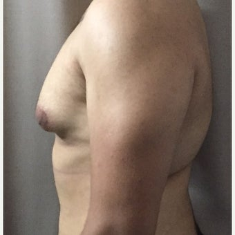 18-24 year old man treated with Male Breast Reduction before 1737615