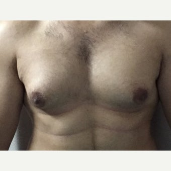 18-24 year old man treated with Male Breast Reduction 1737615