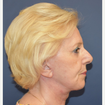 65-74 year old woman treated with Lower Face Lift after 3332212