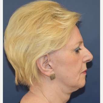 65-74 year old woman treated with Lower Face Lift before 3332212