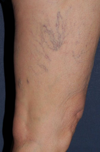 62 year old female treated with Sclerotherapy for Leg Veins before 986761