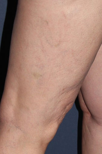 62 year old female treated with Sclerotherapy for Leg Veins after 986761