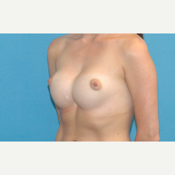 25 year old female with severe symmastia after breast augmentation outside of the USA before 3378205