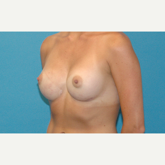 25 year old female with severe symmastia after breast augmentation outside of the USA after 3378205