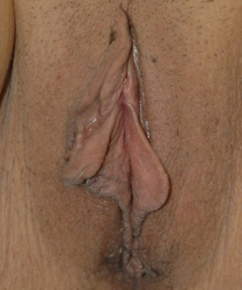 49 year old woman treated with Labiaplasty